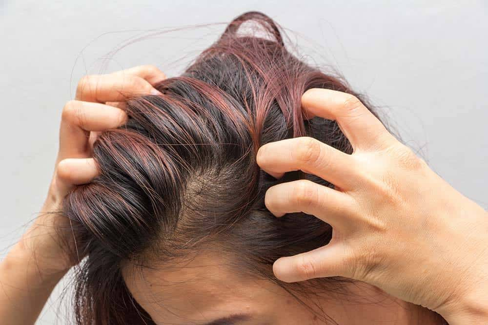 15 Home Remedies for Itchy Scalp