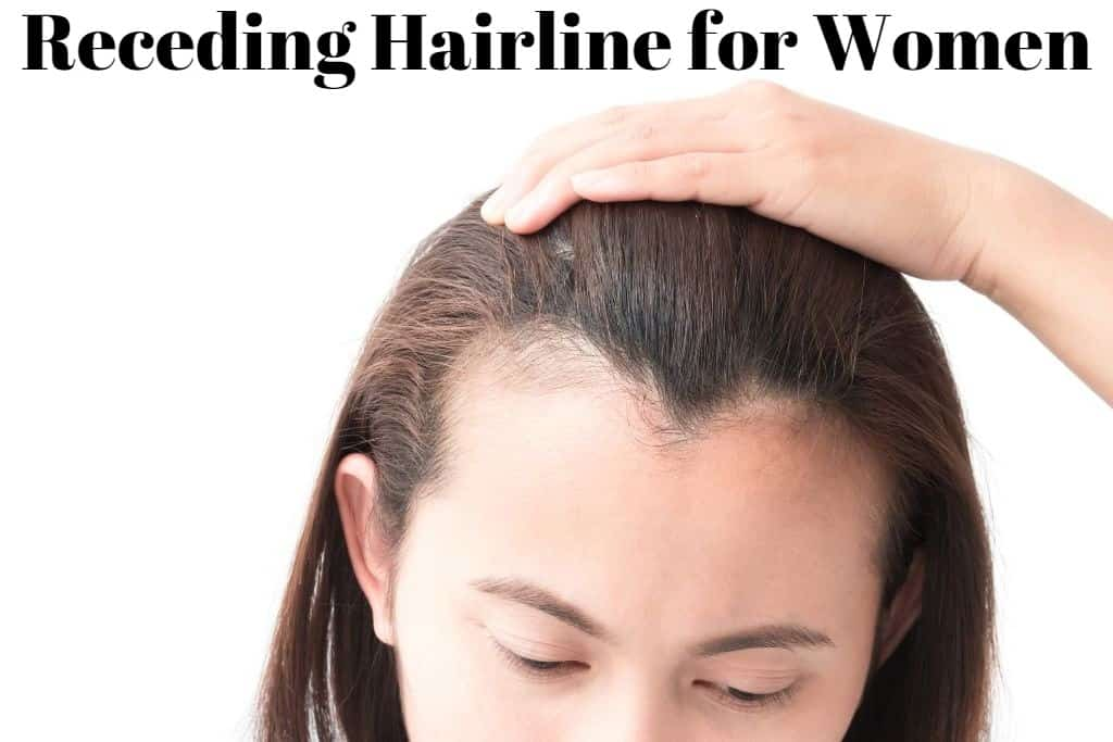 Receding Hairline for Women