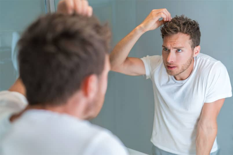 Is Undergoing Hair Transplant the Best Solution for Hair Loss?