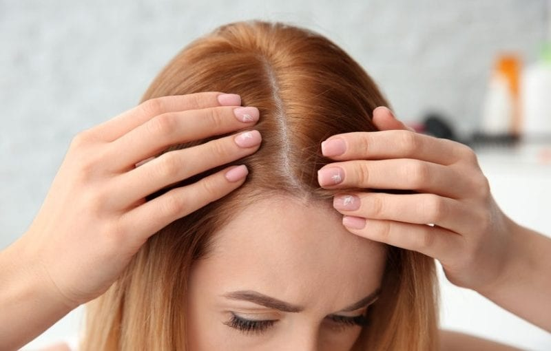 5 Scientifically Backed Reasons Attributed to Female Hair Loss