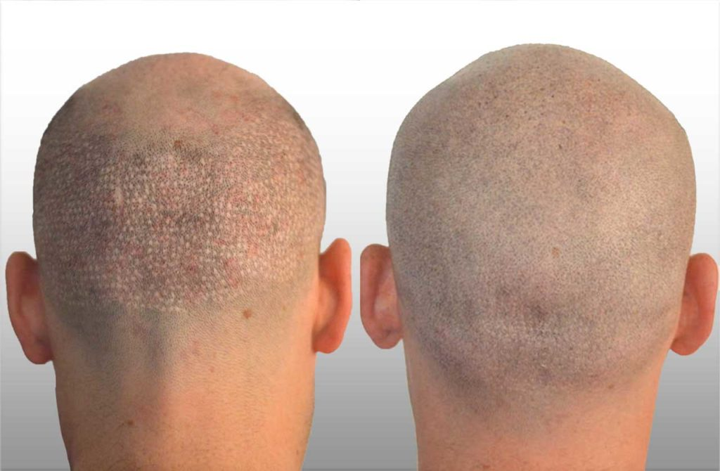 micro scalp pigmentation3