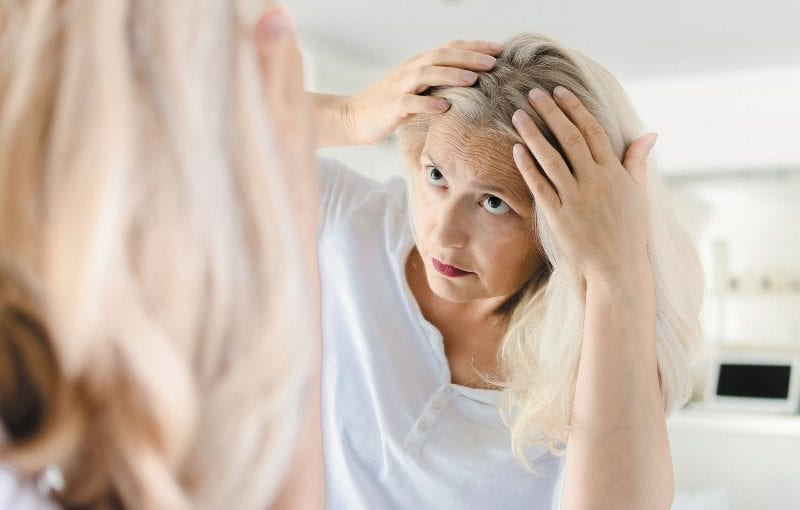 Consider the Following Factors When Selecting The Ideal Hair Loss Medication For You