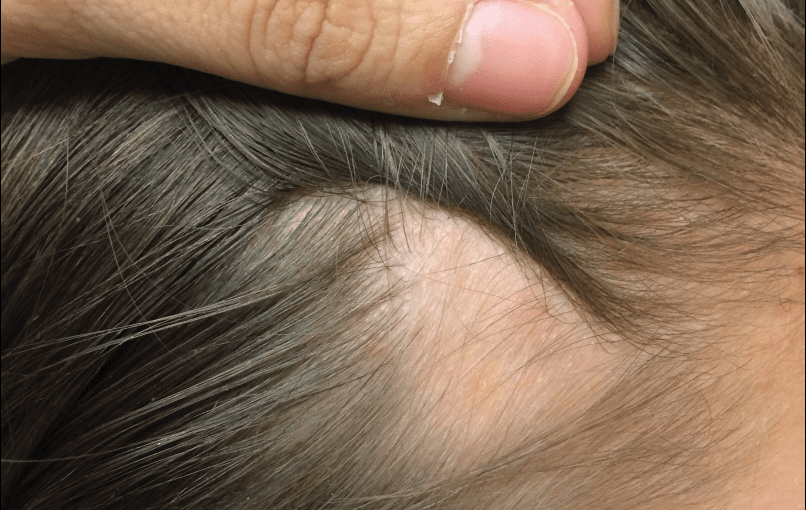 Important Things Everyone Should Know about Scalp Micropigmentation before Opting for It